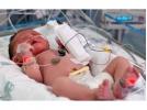 هتلینگ و مراقبت ویژه نوزاد