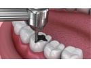 ابزار ترمیمی دندانپزشکی