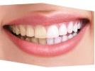 دستگاه بلیچینگ دندان