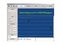 هولتر ریتم Cube Holter Software