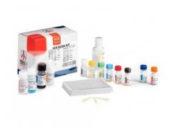 تعیین کمی غلظت HCG (titration) به روش الایزا در سرم انسان (HCG Titration ELISA Kit)